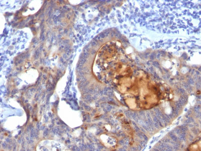 IHC -  IgA Secretory Component / ECM1 Antibody - Without BSA and Azide AH11172-100