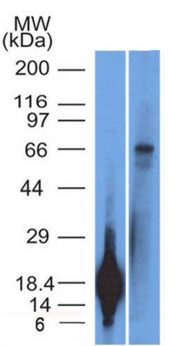 WB -  TRIM29 (Lung Squamous Cell Carcinoma Marker) Antibody AH11235-7
