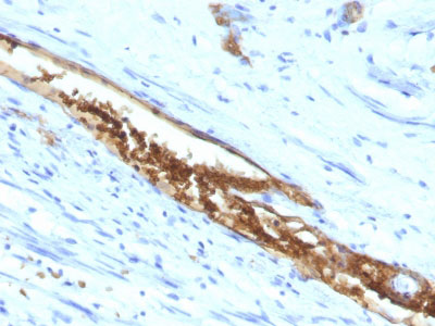 IHC -  Blood Group Antigen A (CD173) Antibody AH11361