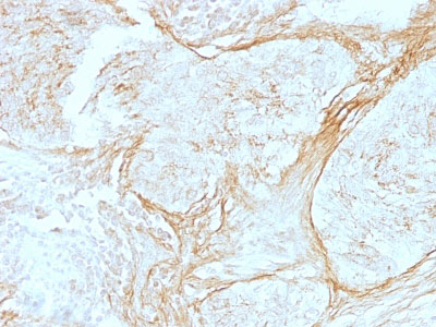 IHC -  Tenascin C (Stromal Marker For Epithelial Malignancy) Antibody - With BSA and Azide AH11480