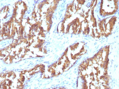 IHC -  IDH1 (Isocitrate Dehydrogenase) Antibody - With BSA and Azide AH11495-20