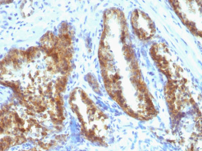 IHC -  Prostate Specific Antigen (PSA) Antibody - Without BSA and Azide AH11568-100