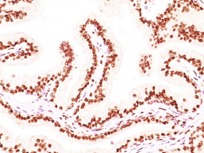 IHC -  Androgen Receptor (Marker of Androgen Dependence) Antibody - Without BSA and Azide AH11602-100