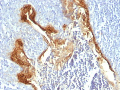 IHC -  Involucrin (Squamous Cell Terminal Differentiation Marker) Antibody AH11617