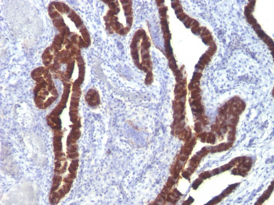 IHC -  Cytokeratin 7 (KRT7) (Glandular and Transitional Epithelial Marker) Antibody AH11643-7