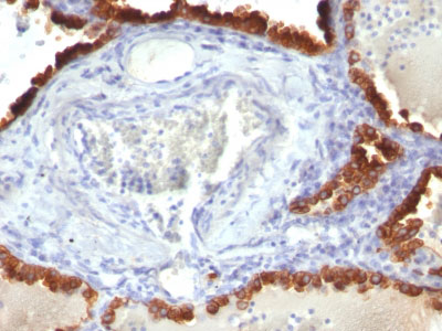 IHC -  Cytokeratin 7 (KRT7) (Glandular and Transitional Epithelial Marker) Antibody - Without BSA and Azid AH11651-100