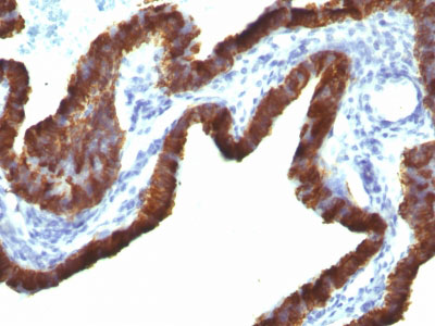 IHC -  Cytokeratin 7 (KRT7) (Glandular and Transitional Epithelial Marker) Antibody AH11655