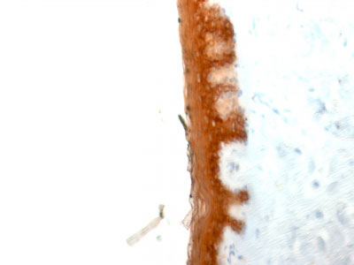 IHC -  Cytokeratin 10 (KRT10) (Suprabasal Epithelial Marker) Antibody - Without BSA and Azide AH11684-100