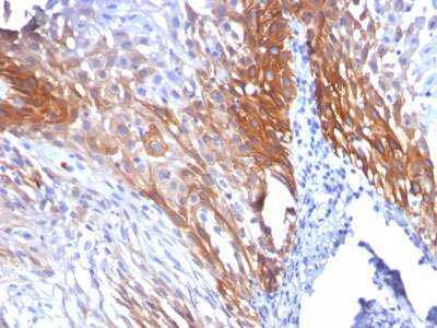 IHC -  Cytokeratin 17 (KRT17) (Basal Epithelial Marker) Antibody AH11694