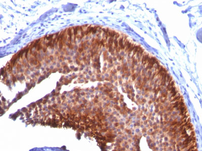 IHC -  Cytokeratin 17 (KRT17) (Basal Epithelial Marker) Antibody - With BSA and Azide AH11695