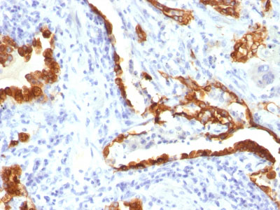 IHC -  Cytokeratin 18 (KRT18) Antibody - Without BSA and Azide AH11709