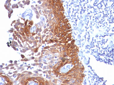 IHC -  Cytokeratin 18 (KRT18) Antibody - Without BSA and Azide AH11721-100