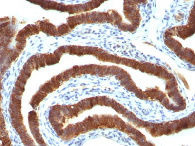 IHC -  Cytokeratin 19 (KRT19) (Pancreatic Stem Cell Marker) Antibody AH11736-7