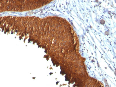 IHC -  Cytokeratin 19 (KRT19) (Pancreatic Stem Cell Marker) Antibody AH11739-7