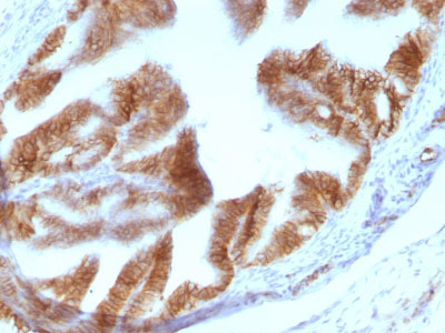 IHC -  Ep-CAM / CD326 (Epithelial Marker) Antibody - With BSA and Azide AH11755-20