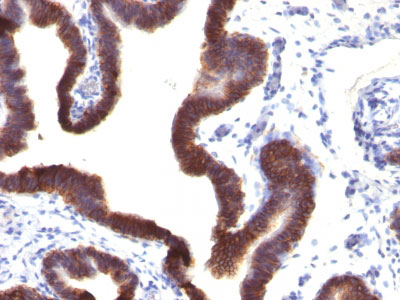 IHC -  Ep-CAM / CD326 (Epithelial Marker) Antibody - With BSA and Azide AH11758-20