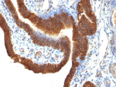 IHC -  Ep-CAM / CD326 (Epithelial Marker) Antibody - Without BSA and Azide AH11762-100