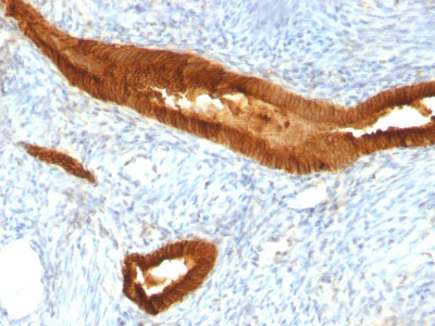 IHC -  Ep-CAM / CD326 (Epithelial Marker) Antibody - Without BSA and Azide AH11767-100