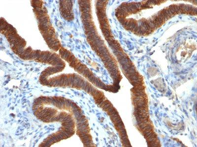 IHC -  Ep-CAM / CD326 (Epithelial Marker) Antibody - With BSA and Azide AH11774-20