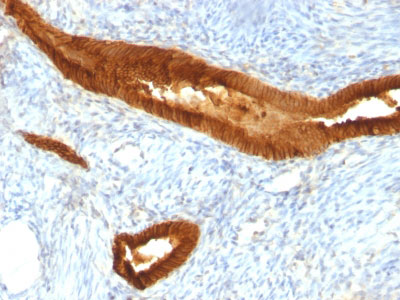 IHC -  Ep-CAM / CD326 (Epithelial Marker) Antibody - Without BSA and Azide AH11775-100