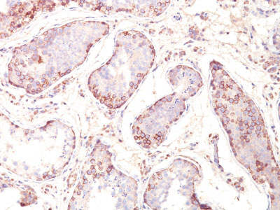 IHC -  MAGE-1 (Target for Cancer Immunotherapy) Antibody - Without BSA and Azide AH11784-100