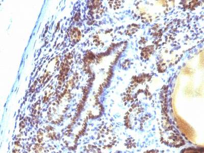 IHC -  MAP3K1 (Mitogen-Activated Protein Kinase Kinase Kinase 1) Antibody - Without BSA and Azide AH11804-100