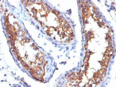 IHC -  CD99 / MIC2 (Ewing's Sarcoma Marker) Antibody - Without BSA and Azide AH11816