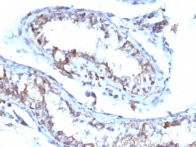 IHC -  Moesin Antibody - Without BSA and Azide AH11852