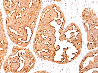 IHC -  MUC1 / EMA / CD227 (Epithelial Marker) Antibody - Without BSA and Azide AH11864-100