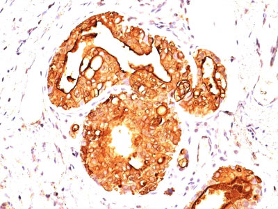 IHC -  MUC1 / EMA / CD227 (Epithelial Marker) Antibody - With BSA and Azide AH11873-20