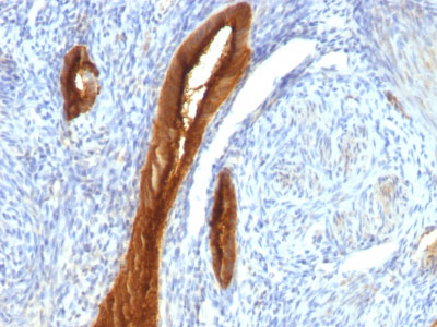 IHC -  MUC1 / EMA / CD227 (Epithelial Marker) Antibody - With BSA and Azide AH11876