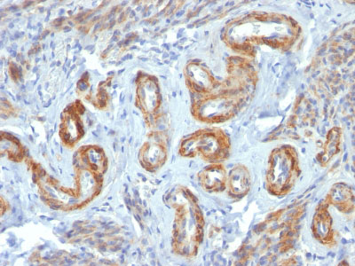 IHC -  Smooth Muscle Myosin Heavy Chain (SM-MHC) (Leiomyosarcoma & Myoepithelial Cell Marker) Antibody - W AH11950-20