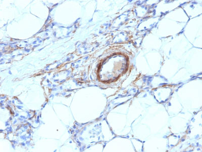 IHC -  Smooth Muscle Myosin Heavy Chain (SM-MHC) (Leiomyosarcoma & Myoepithelial Cell Marker) Antibody - W AH11953-20