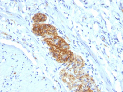 IHC -  CD56 / NCAM1 / NKH1 (Neuronal Cell Marker) Antibody - With BSA and Azide AH11972-20