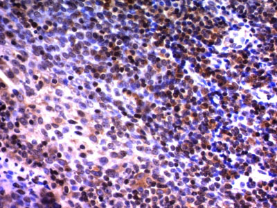 IHC -  Nuclear Mitotic Apparatus Protein (NuMA) Antibody - With BSA and Azide AH12019