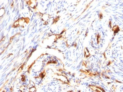 IHC -  Beta-2 Microglobulin (Renal Failure & Tumor Marker) Antibody AH12127-7