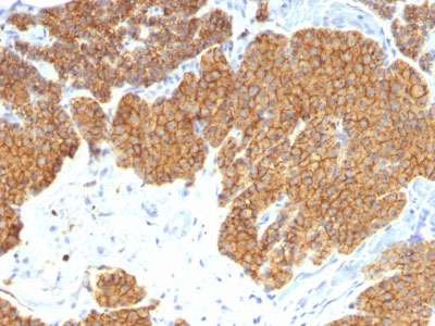 IHC -  Parathyroid Hormone (PTH) (N-Terminal) Antibody - Without BSA and Azide AH12144