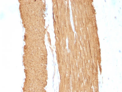 IHC -  Actin, Smooth Muscle (Leiomyosarcoma Marker) Antibody - Without BSA and Azide AH12227-100