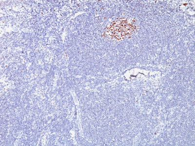 IHC -  Bcl-6 (Follicular Lymphoma Marker) Antibody - With BSA and Azide AH12267