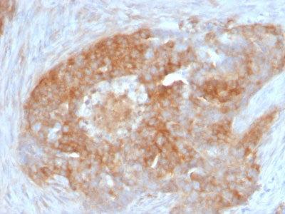 IHC -  Fascin-1 (Reed-Sternberg Cell Marker) Antibody - Without BSA and Azide AH12330