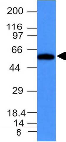 WB -  Fascin-1 (Reed-Sternberg Cell Marker) Antibody - Without BSA and Azide AH12330