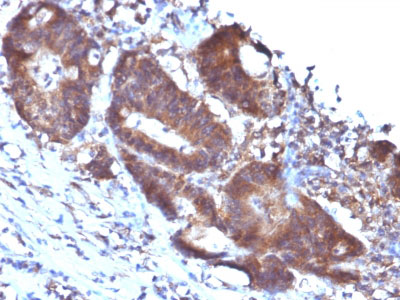 IHC -  Transgelin (SM22-alpha) Antibody - Without BSA AH12373
