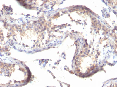 IHC -  TGF-alpha (Transforming Growth Factor alpha) Antibody - With BSA and Azide AH12403-20