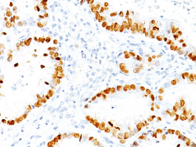 IHC -  TTF-1 / NKX2.1 (Thyroid & Lung Epithelial Marker) Antibody - Without BSA and Azide AH12420