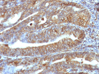 IHC -  Vimentin (Mesenchymal Cell Marker) Antibody - With BSA and Azide AH12519-20