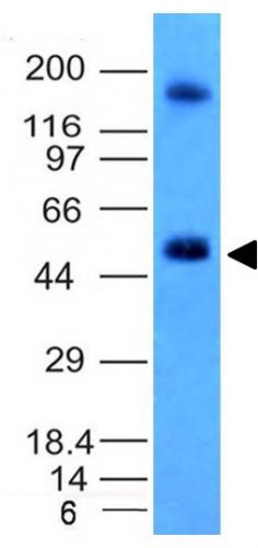 WB -  Carbonic Anhydrase IX (Renal Cell Marker) Antibody - Without BSA and Azide AH12552-100