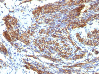 IHC -  Caldesmon, HMW (h-Caldesmon) (Smooth Muscle Marker) Antibody - Without BSA and Azide AH12564-100