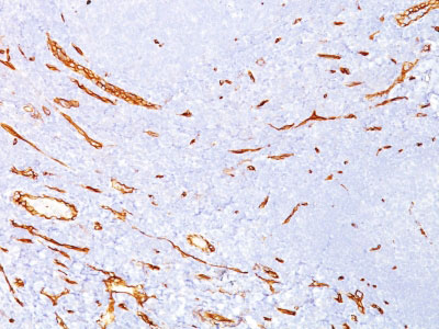 IHC -  CD34 (Hematopoietic Stem Cell & Endothelial Marker) Antibody AH12699