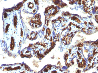 IHC -  CD34 (Hematopoietic Stem Cell & Endothelial Marker) Antibody AH12701-7