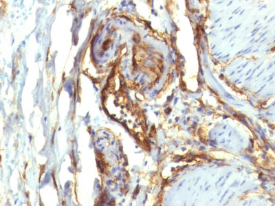 IHC -  CD34 (Hematopoietic Stem Cell & Endothelial Marker) Antibody - With BSA and Azide AH12705